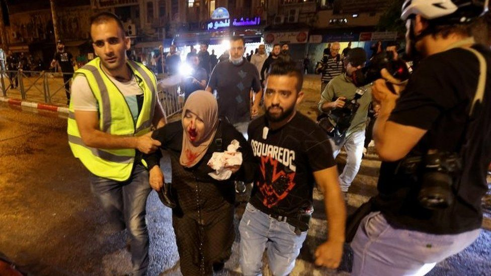 About 90 Palestinians injured in Israeli crackdown in Jerusalem